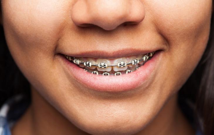 brackets en Clinica dental Avila bobillo en chiclana